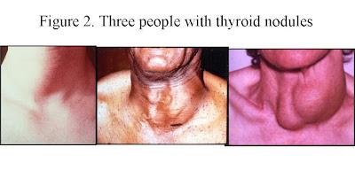Thyroid Goiter  The Clayman Thyroid Cancer Center